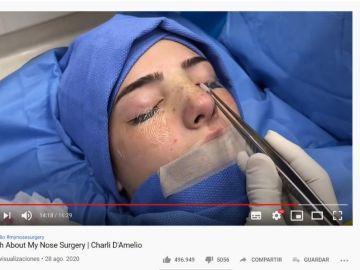 Charli D'Amelio durante su operación de nariz