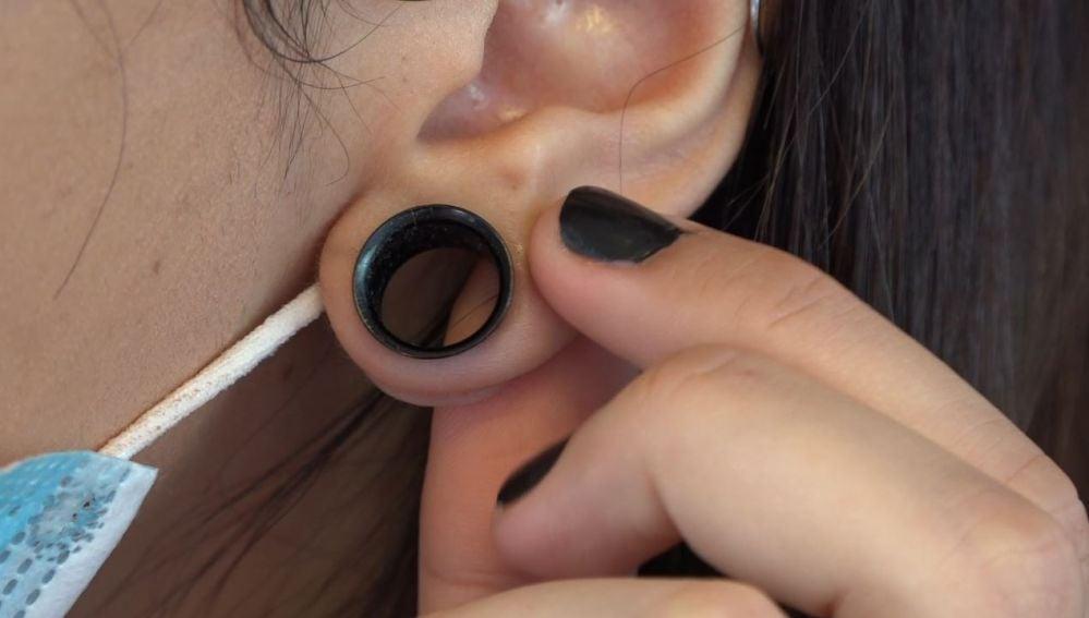 Dilatación en una oreja